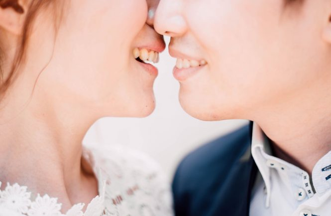 Zahnbleaching, Brautpaar